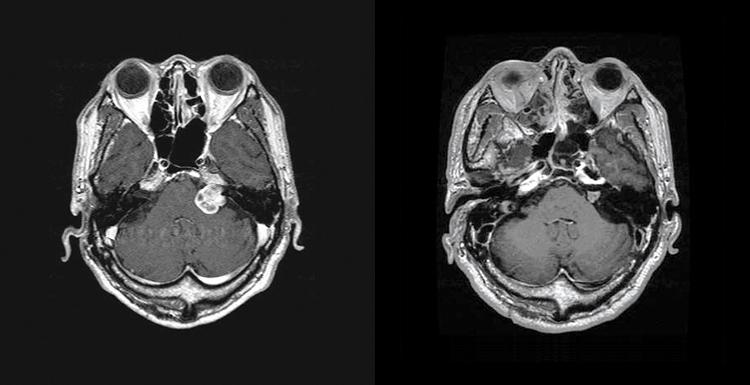 聴神経腫瘍